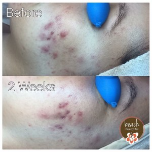 Two Week Clinical Acne Check In