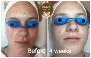 Four Week Acne Check In